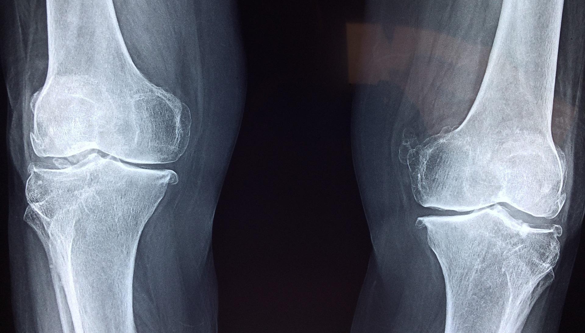 Kniegelenke Röntgenbild
